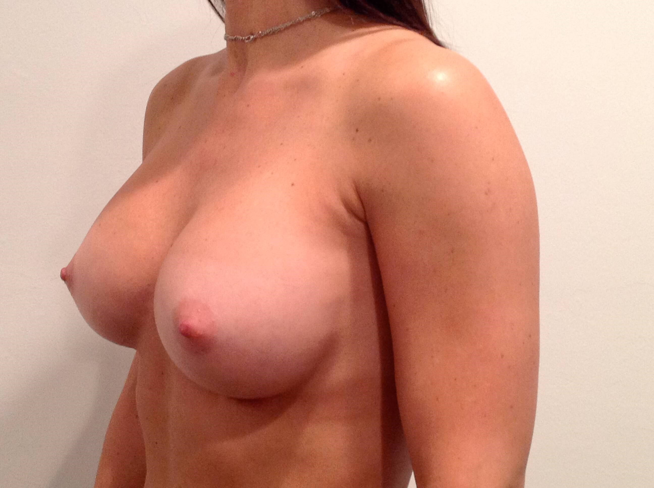 Breast Augmentation Oblique After 325 cc Gel Implants