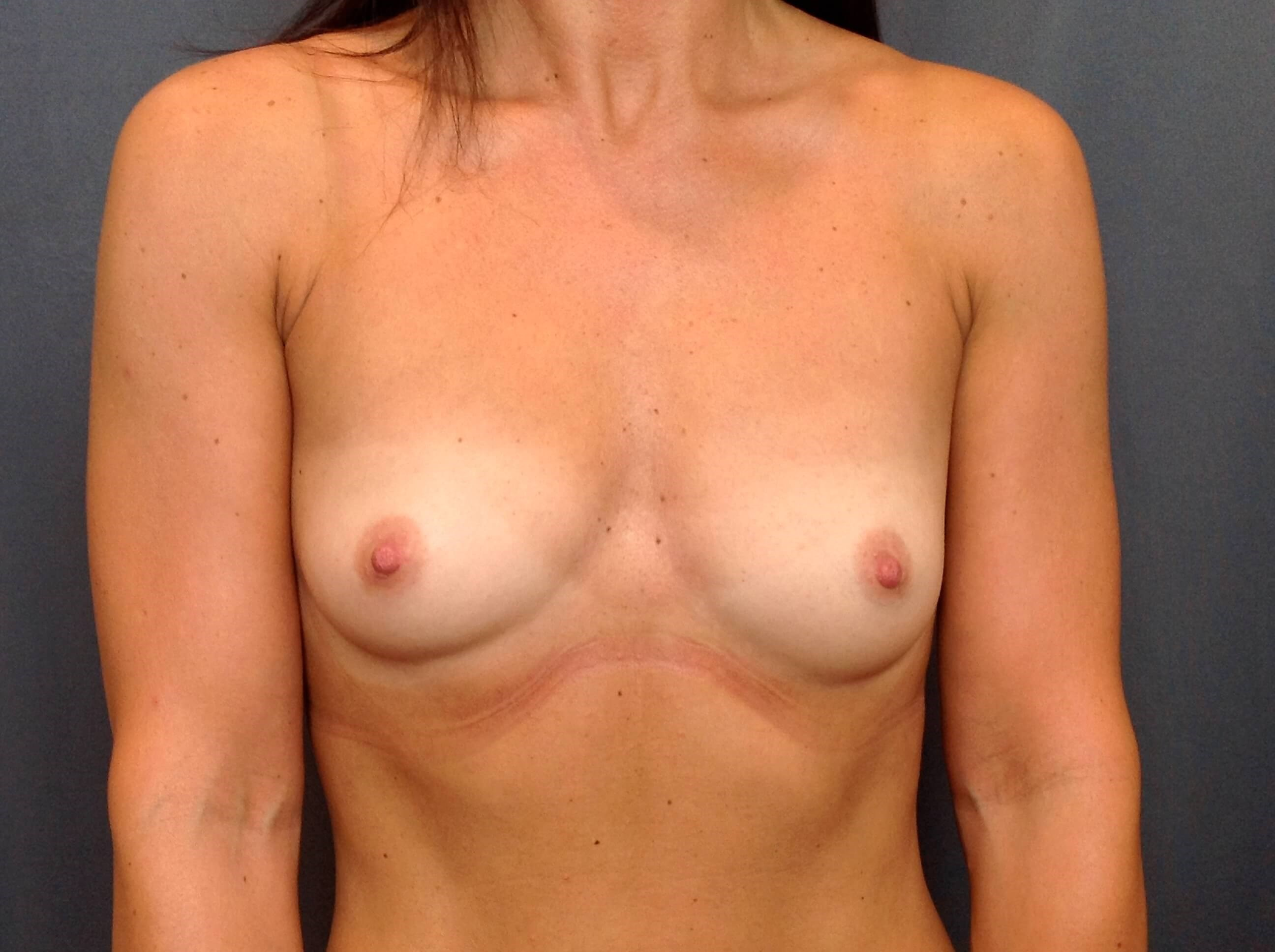 Breast Augmentation Front View Before Breast Augmentation