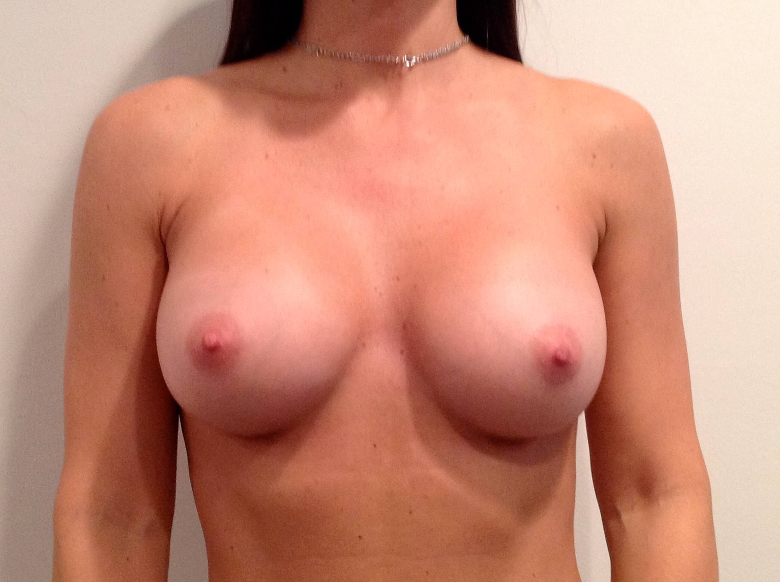 Breast Augmentation Front View After 325cc  Gel Implants