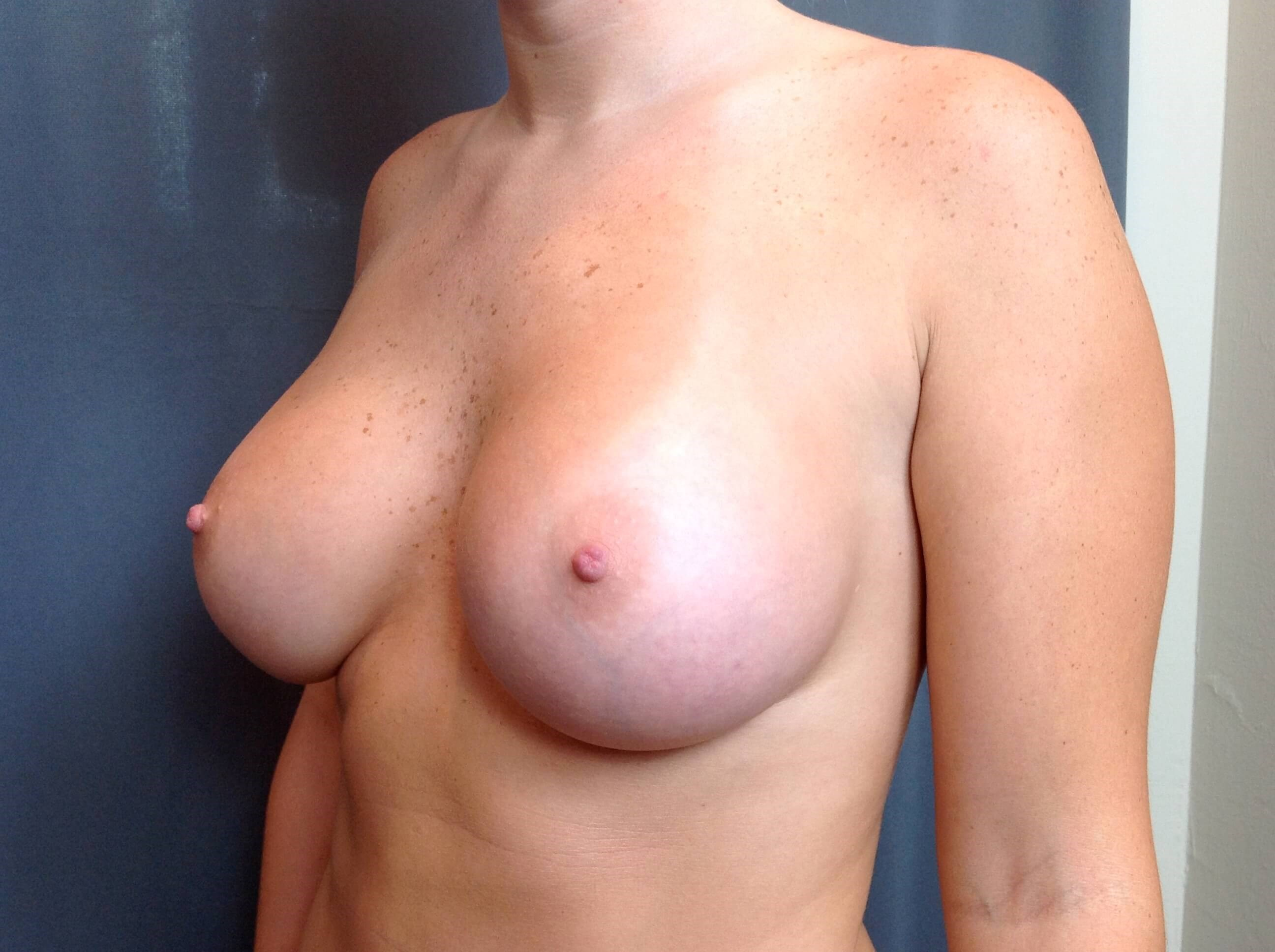 Breast Augmentation After Saline Implants