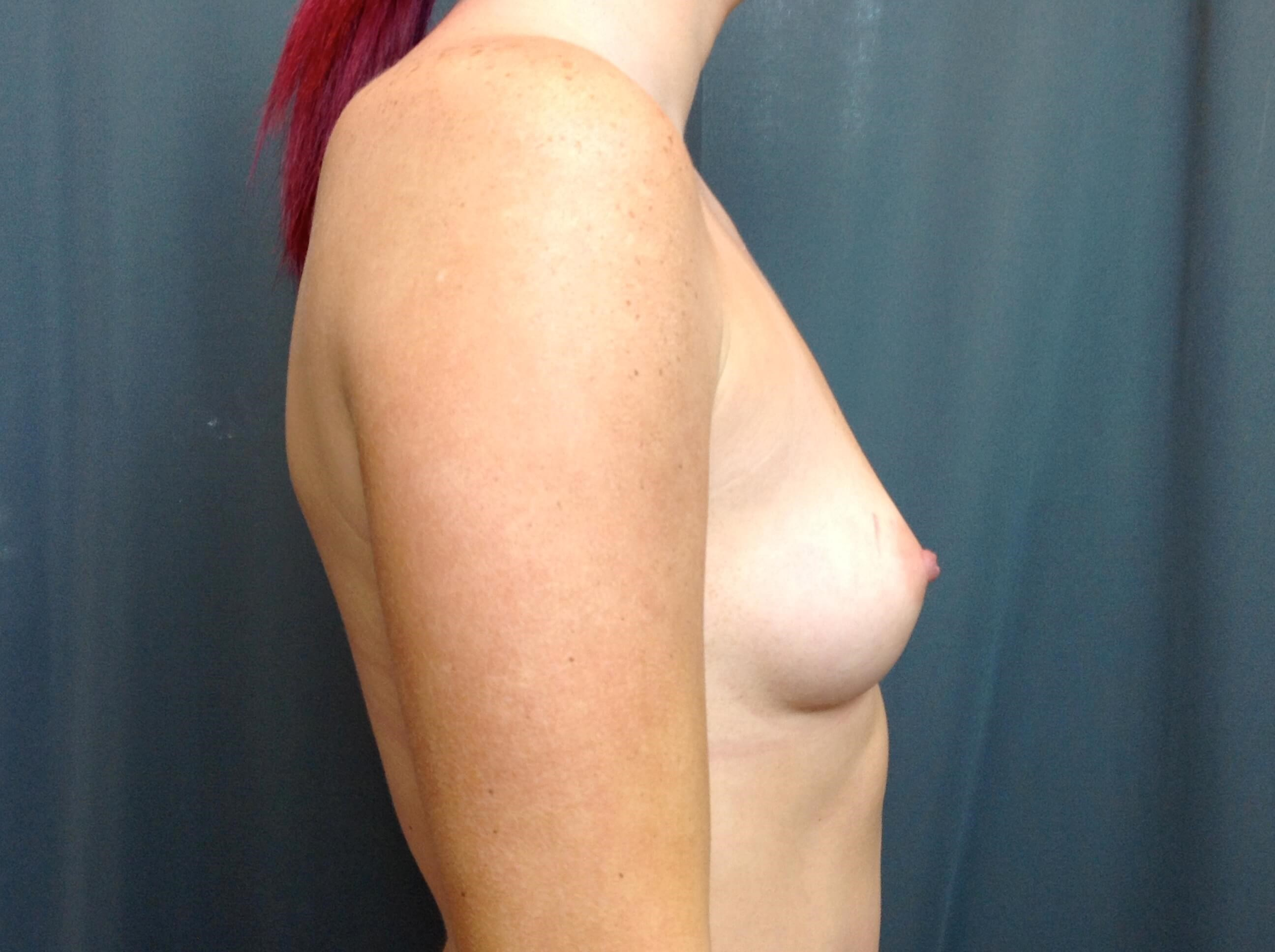 Breast Augmentation Side View Before Breast Augmentation