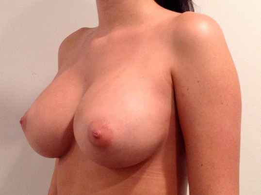 B After Silicone Breast Implants