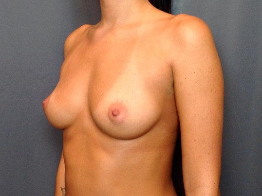 B Before Breast Augmentation