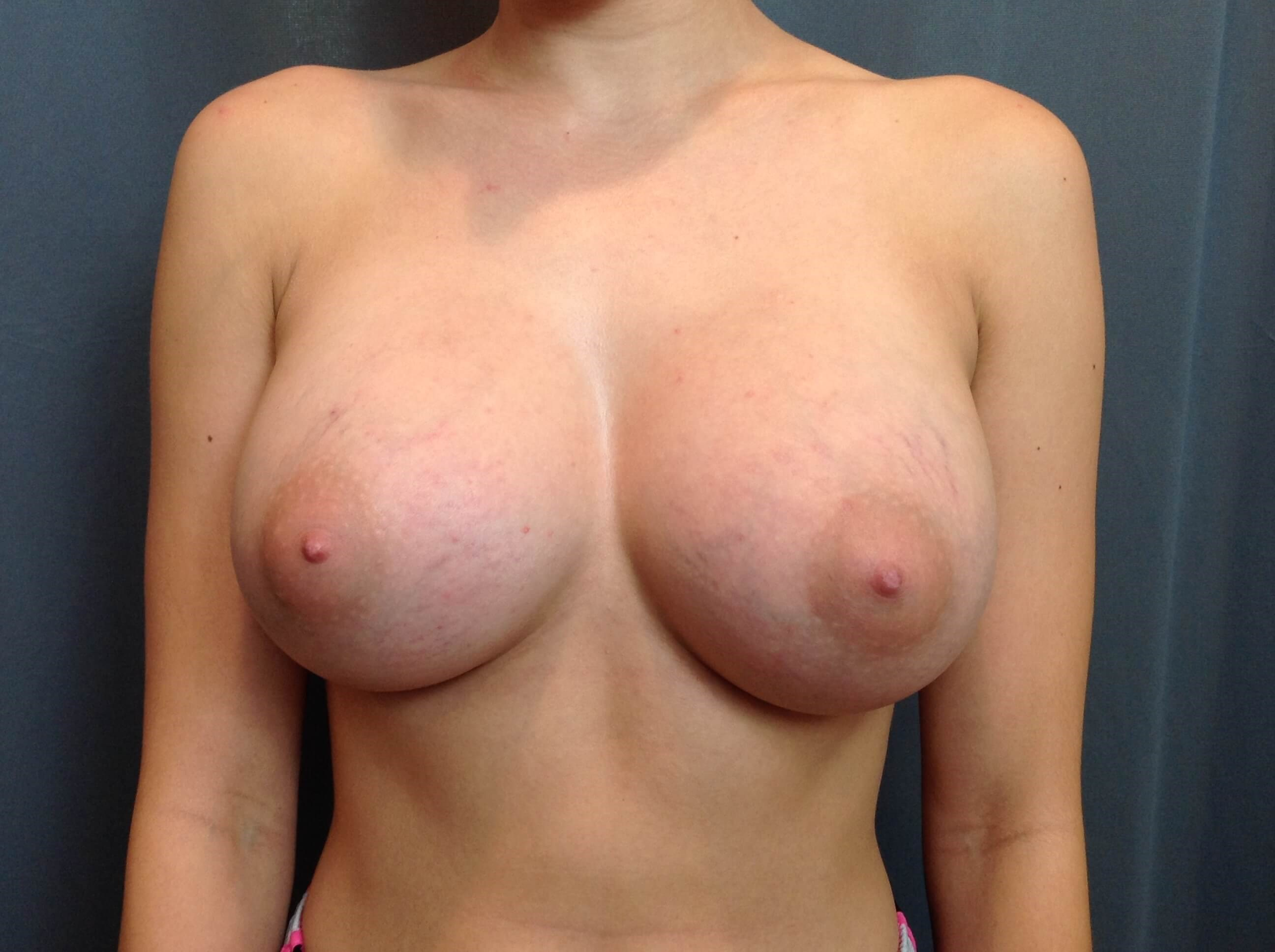 Breast Augmentation Oblique After Silicone Breast Implants