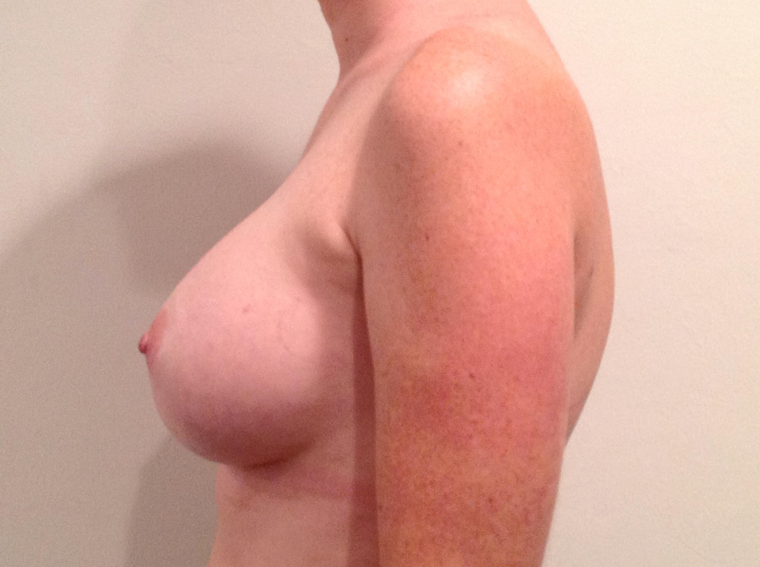 Breast Augmentation Side View After Saline Implants