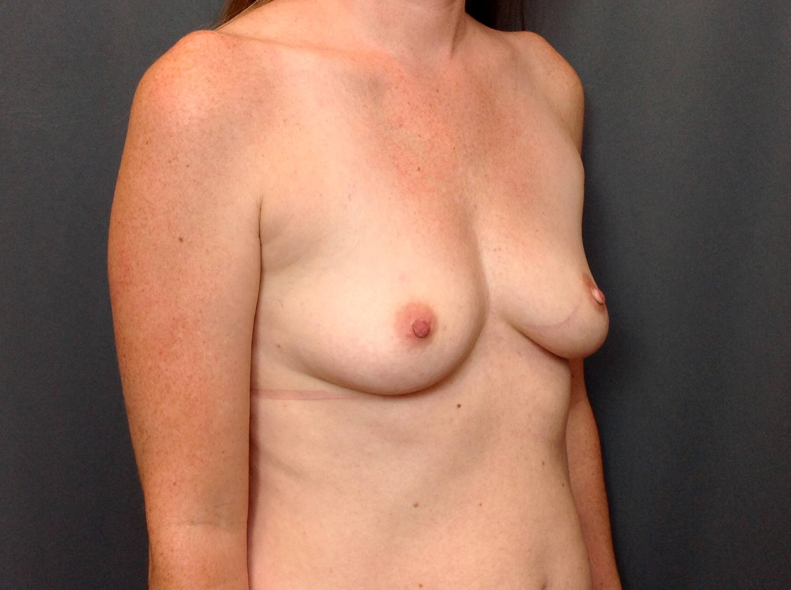 Breast Augmentation Oblique Before Breast Augmentation