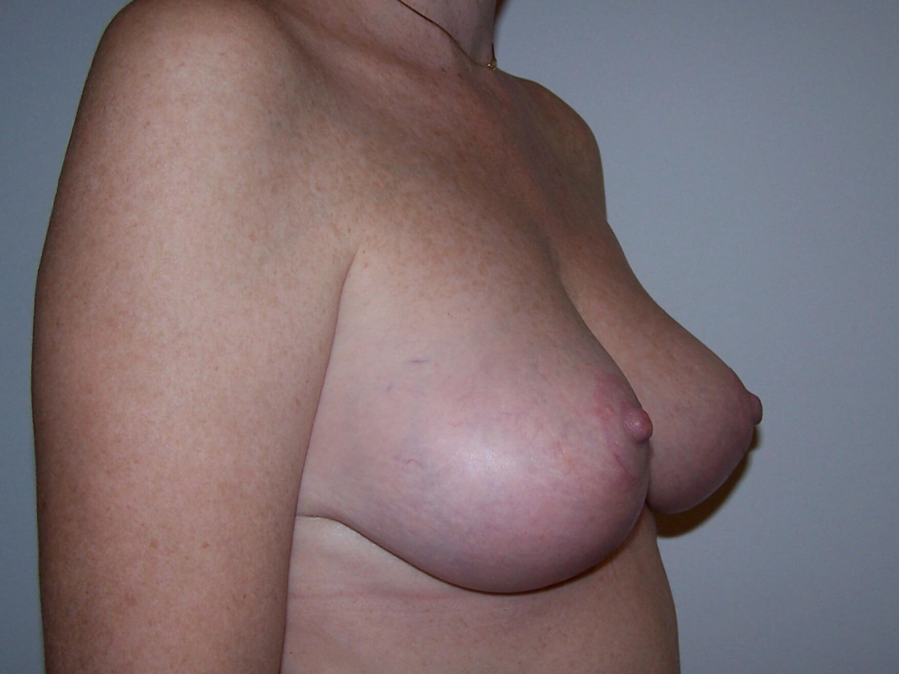 Breast Lift Oblique View After Breast Lift