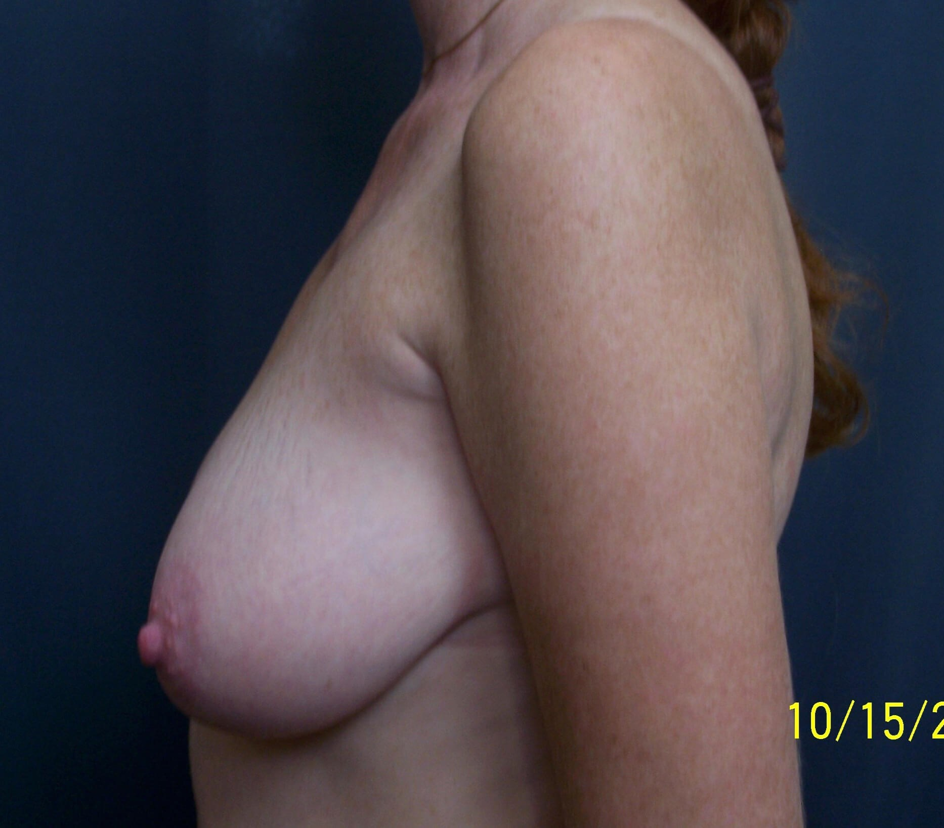 Breast Lift Side View Before Breast Lift