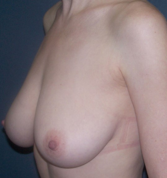 Breast Lift Oblique View Before Breast Lift