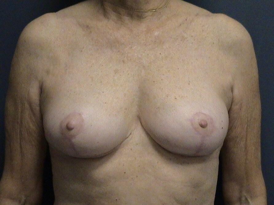 Breast Lift Front View After Breast Lift