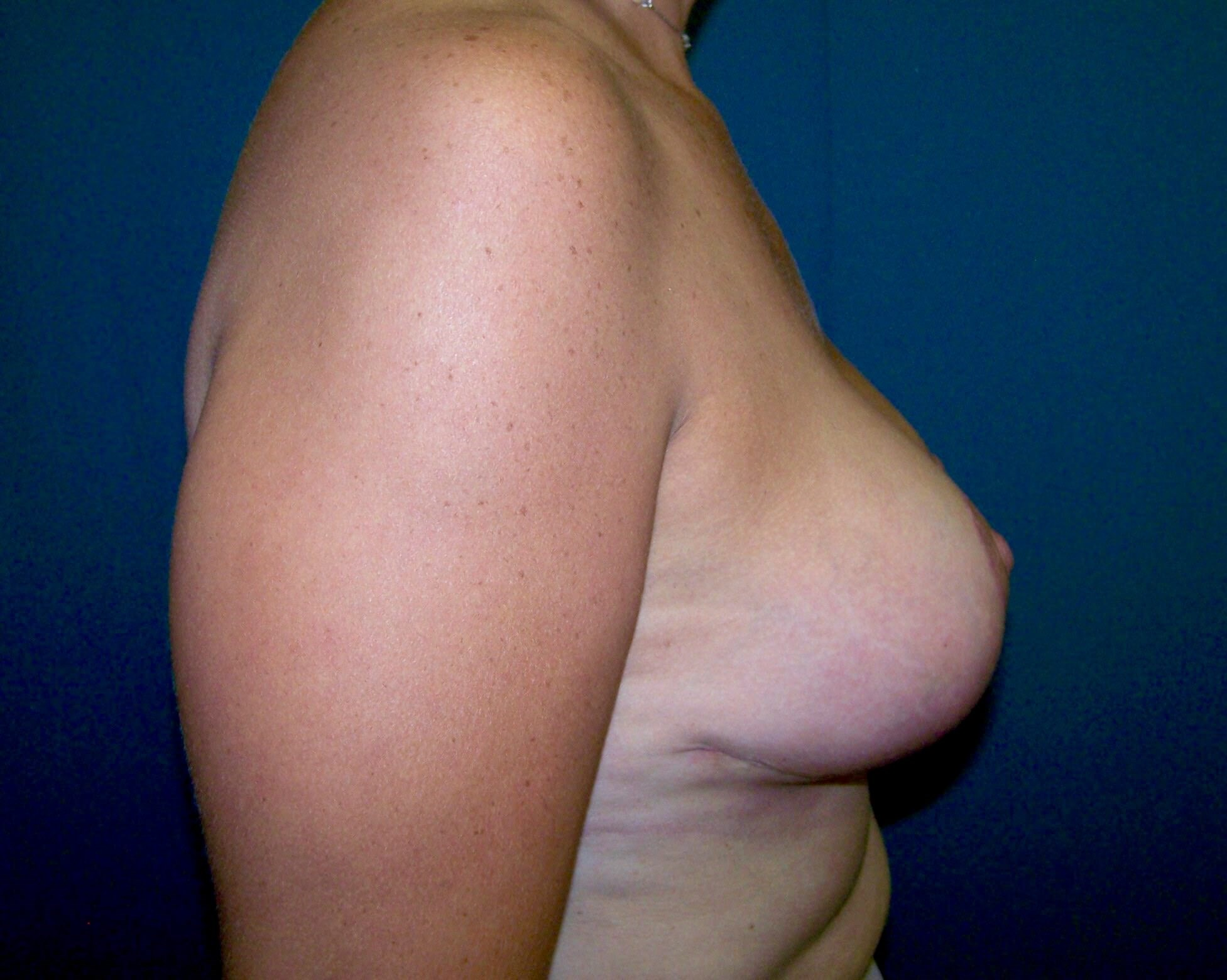 Breast Lift Side View After Breast Lift