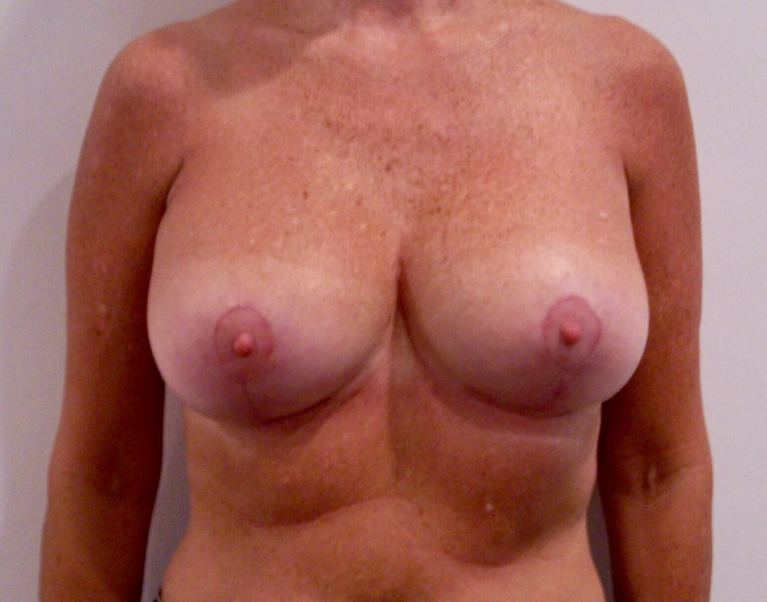 Breast Augmentation and Lift After Augmentation Mastopexy