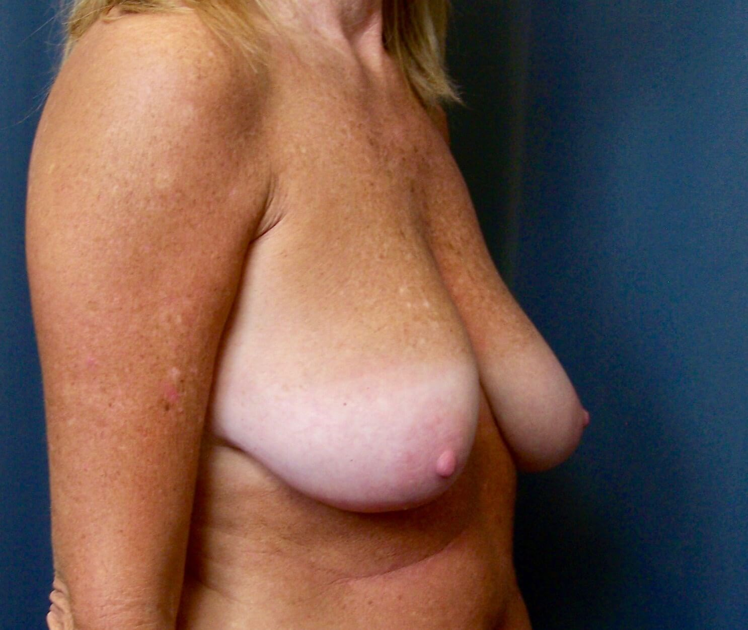 Breast Augmentation and Lift Before Augmentation Mastopexy