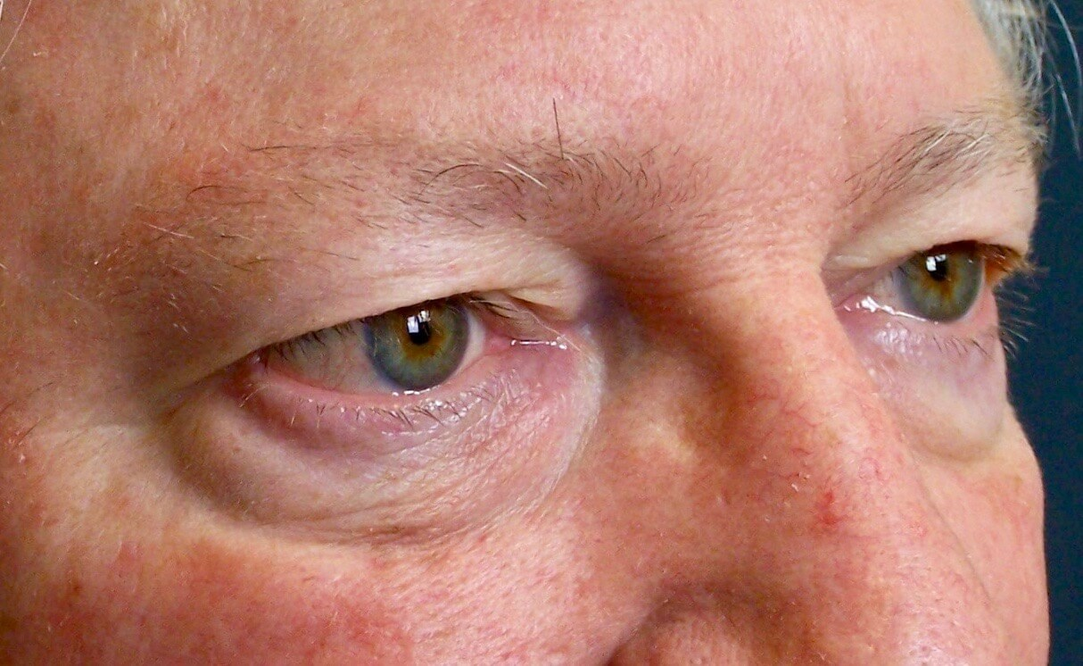 Before and After Eyelid Surgery Photos