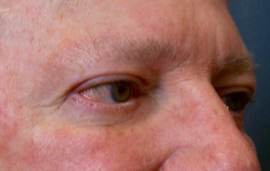 Upper & Lower Eyelid Lift After Blepharoplasty