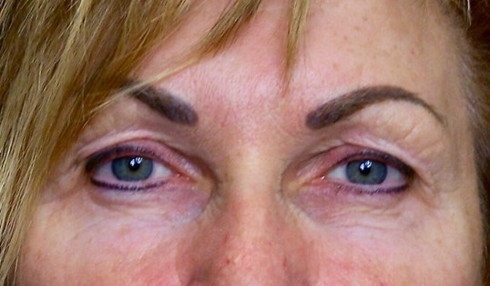 Upper Eyelid Lift Results Before Blepharoplasty