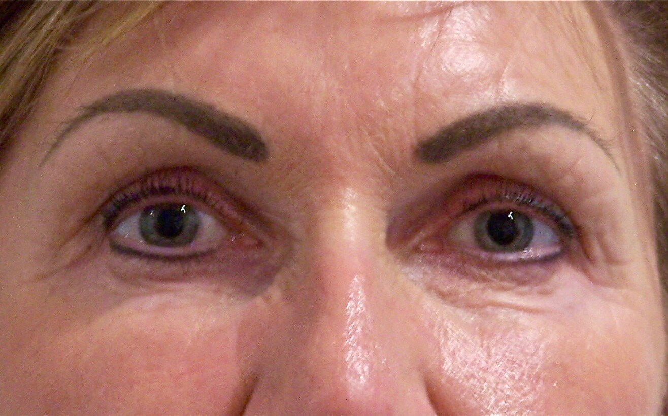Upper Eyelid Lift Results After Blepharoplasty