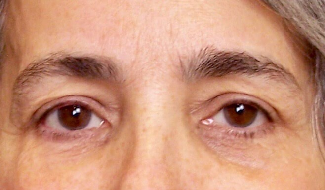 Upper Eyelid Lift Before Upper Blepharoplasty