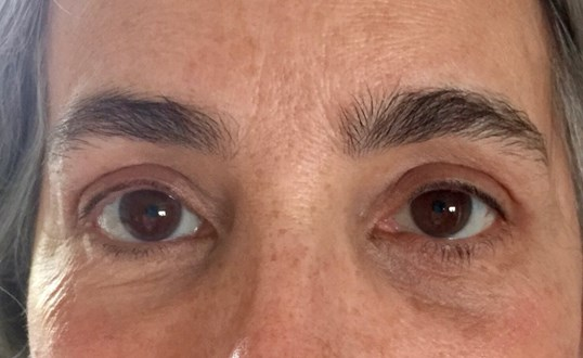 Upper Eyelid Lift After Upper Blepharoplasty