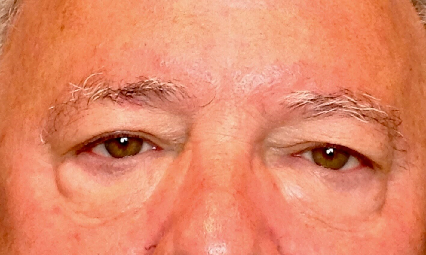 Upper & Lower Eyelid Lift Before Blepharoplasty