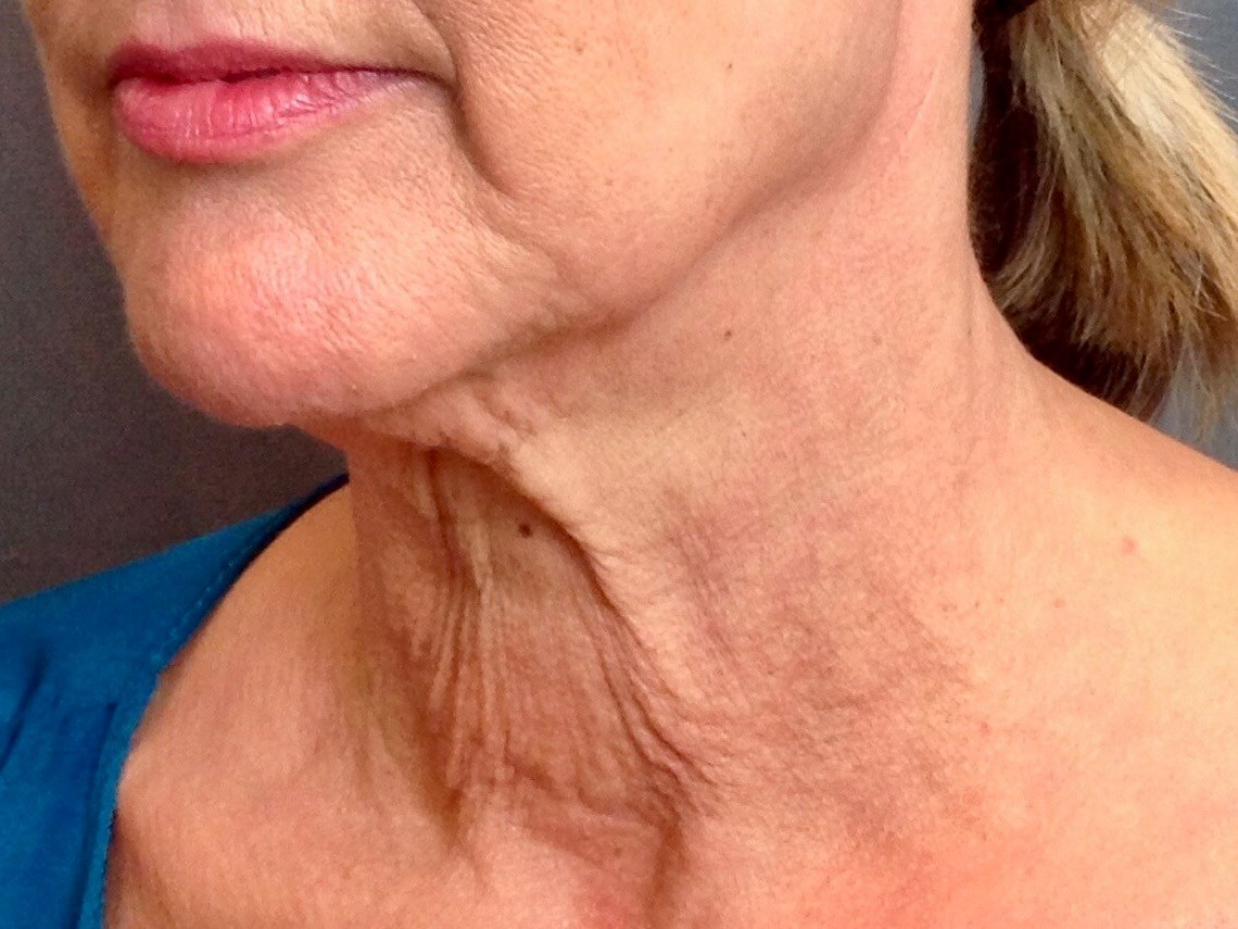 Neck Lift, Cervicoplasty Before Neck Lift