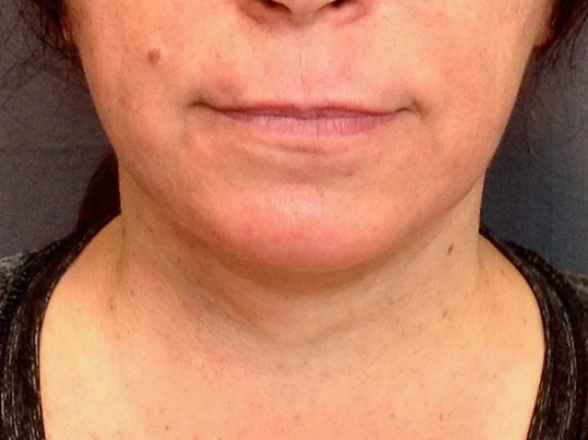 Neck Lift, Cervicoplasty After Neck Lift