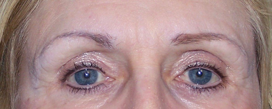 Brow Lift, Forehead Lift After Brow Lift