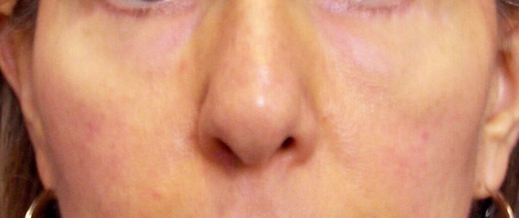 fat grafting to face After face fat transfer
