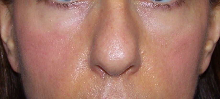 fat grafting to face Before face fat transfer