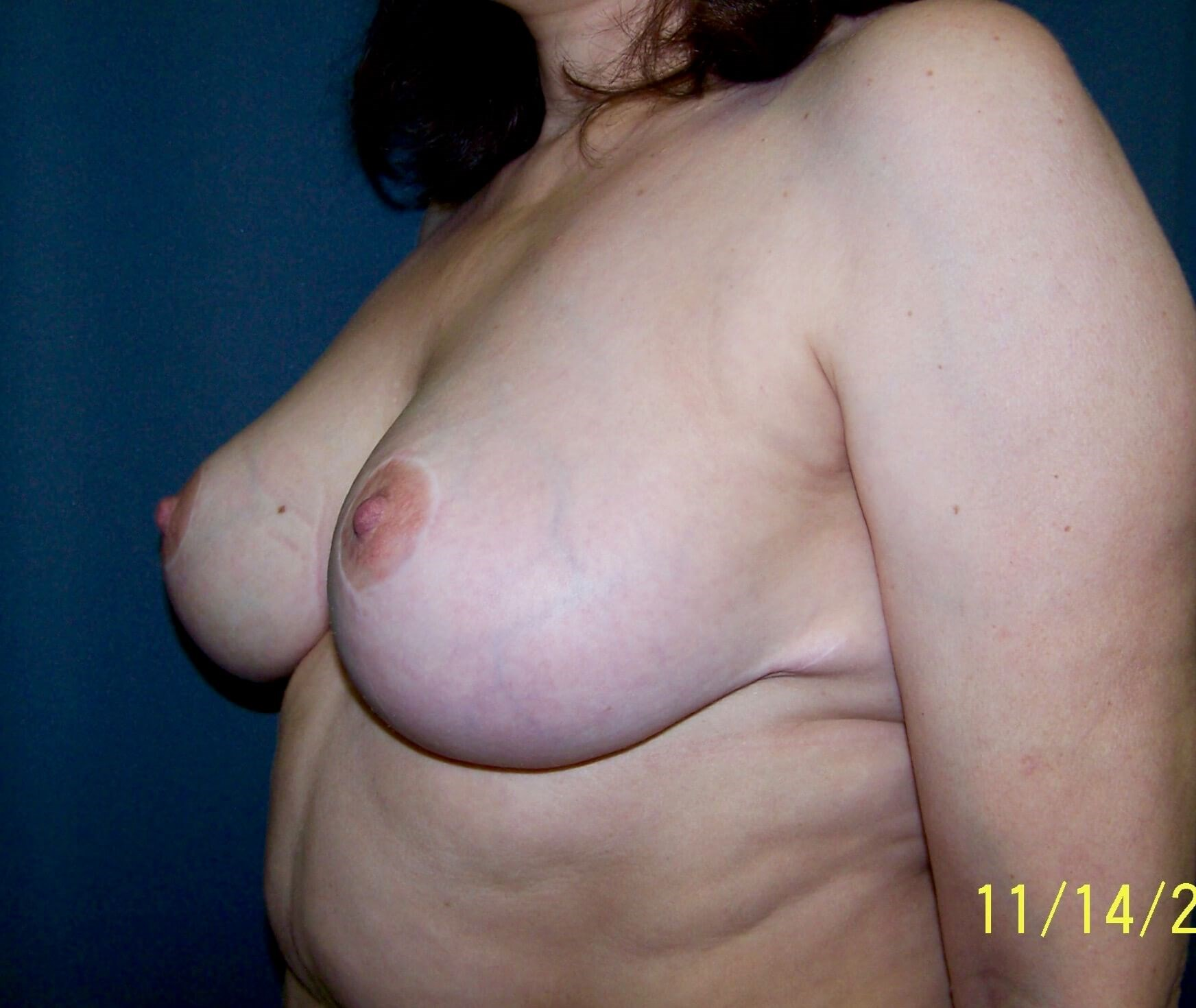 Breast Reduction After Breast Reduction
