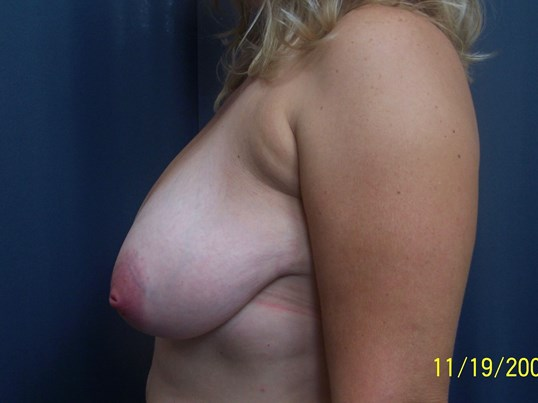 Breast Reduction Before Breast Reduction